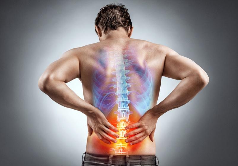 腰部狭窄症